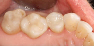 The tops of teeth inside someone's mouth