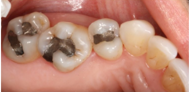 several caps on teeth inside someone's mouth