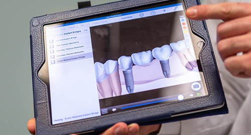 A dentist holds a tablet showing how tooth implants work