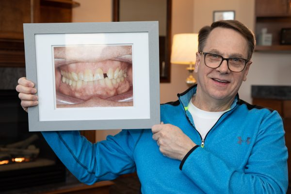 A man with a nice smile shows how strange his teeth used to be.