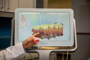 A dentist shows you the 3d scan of your teeth.